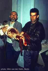 injured civlians in chechen war 1994-1995